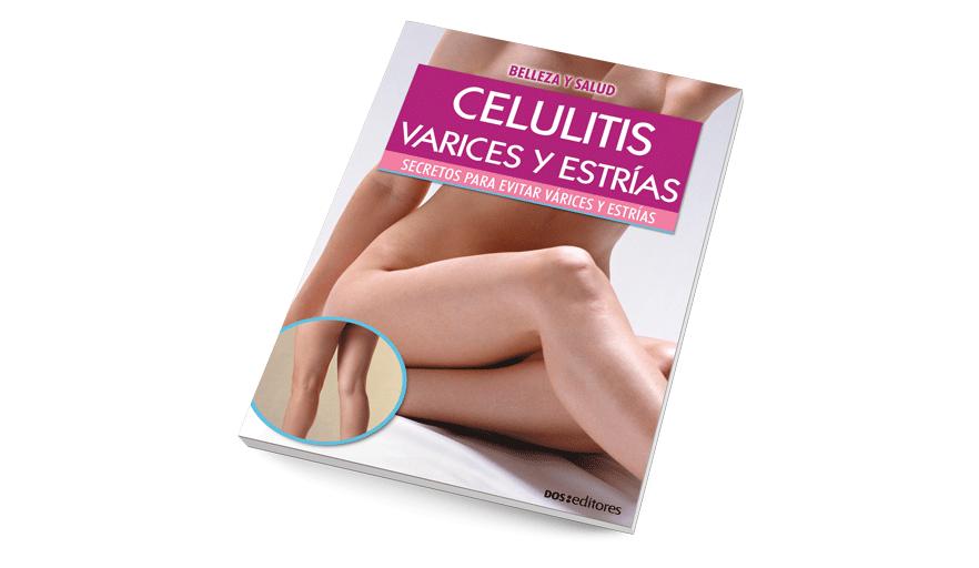 Celulitis, várices y estrías